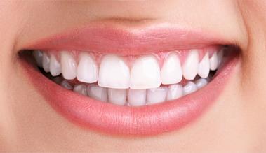 Exodus Dental Care Smile Gallery